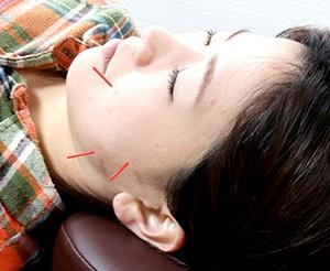 鍼灸治療もおこなっています